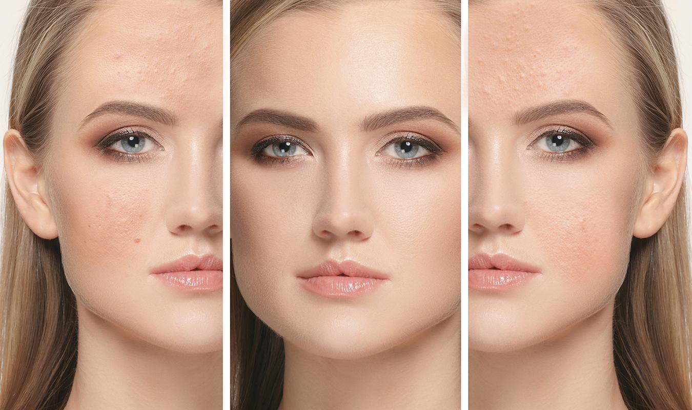 Les 9 meilleurs traitements contre les cicatrices d acné recommandés ... 90dca2ec069