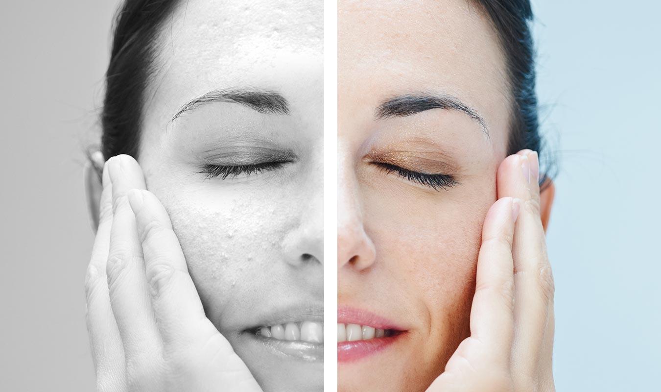 Microkystes visages, comment les traiter ? Naturellement ou grâce à un traitement, on vous dit tout !