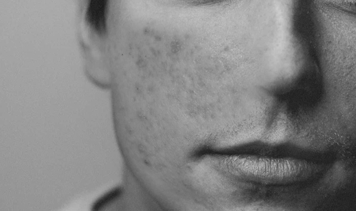 Qu'est-ce-qu'une-cicatrice-d'acnée